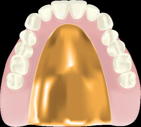 ゴールド床入れ歯